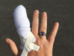 A picture of Anne Gibson's hand with the index finger wrapped so heavily in gauze it looks like a cartoon character